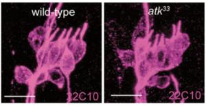 Figura 4. Órgano lch5 en un individuo normal a la izquierda. A la derecha individuo mutante para atk. Los cilios sensoriales están en paralelo y aupuntando en la misma dirección en el individuo normal. Los cilios en el individuo mutante no están en paralelo y están deslineados.